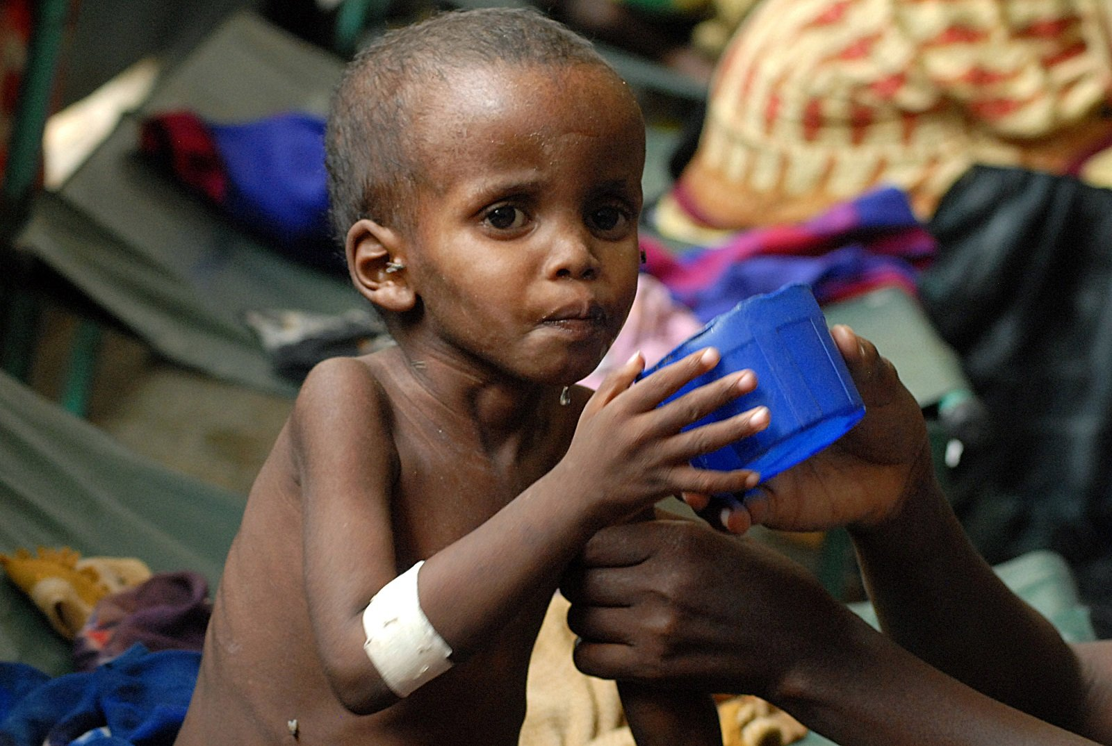 the epidemic of under nutrition haunts india�s cities and