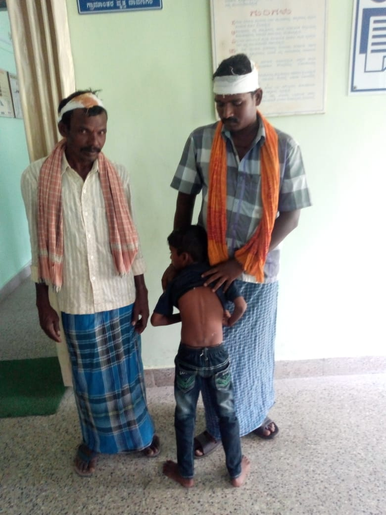 Ajay, Six year old boy, beaten up by cycle chains