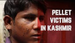 Pellet injuries Kashmir