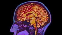 How Dementia Spreads Through Brain