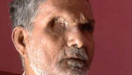 Patel Shah, 60 The Bhagalpur resident was blinded in October 1980 allegedly by the police. Shah had later alleged that then SP V D Ram was present when a mob and policemen punctured his eyes with a bicycle spoke and injected acid into his eyes.