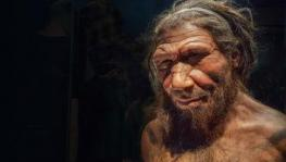 Genetic Ancestry of Pain Sensitivity Traced Back to Neanderthals